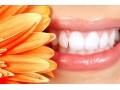 让牙齿变白的五种食物!